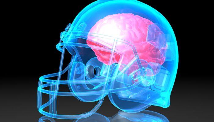 Concussion Lawsuit