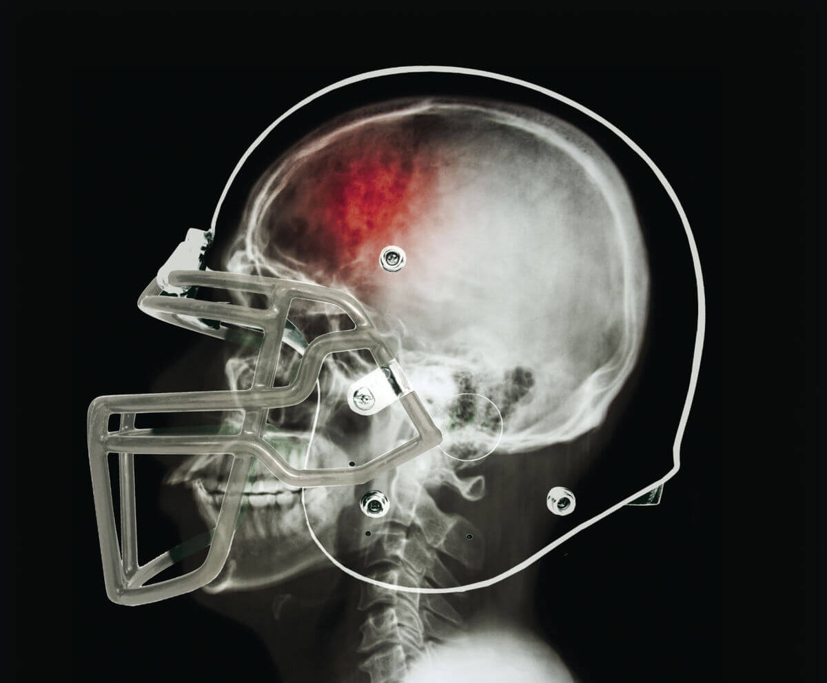 Raizner Slania Files Five NCAA Concussion Lawsuits On Behalf of College Football Players