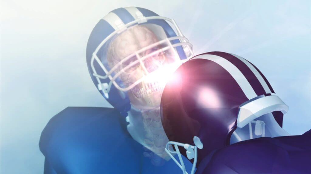 New Look At Concussion Research