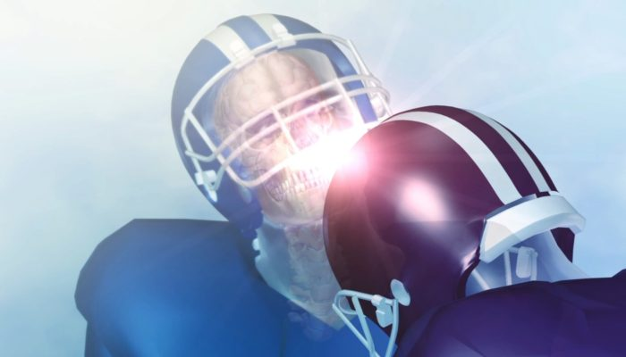 91% of Former NCAA Football Players Diagnosed with CTE ...