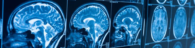 Concussion Brain Trauma
