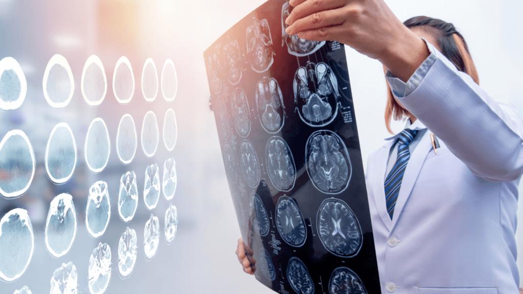 CTE Brain Damage